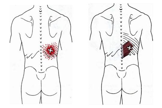 Nie wieder Rückenschmerzen! | Creative Blog